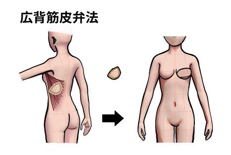 広背筋皮弁法
